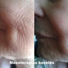 Mezoterápia, ránctalanítás